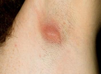 ingrown hair armpit
