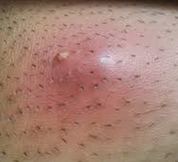 Image Gallery Ingrown Hair Legs