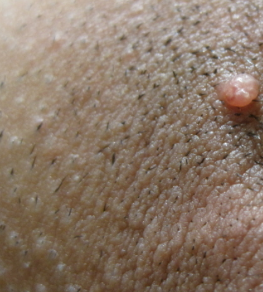 Ingrown Hair Cyst Pubic Area Ingrown Hair On Pubic Area