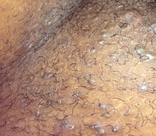itchy bumps on vulva