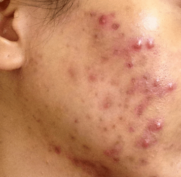 pimples on cheeks - acne