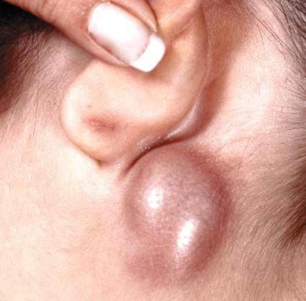 Bump behind ear painless lump painful soft hurts cyst lobe swollen lymph nodes behind ear ccuart Images