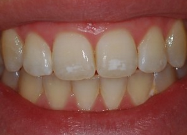 Yellow and white patches on teeth