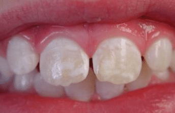 white stains on teeth