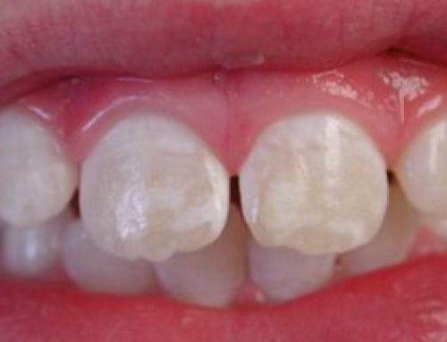 White Spots on Teeth, Marks, Stains, Get Rid, Front, after Braces, Bleaching, Baby, when Sick, Remove, Pictures