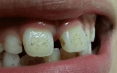 Natural Remedy For White Plaque On Front Tooth