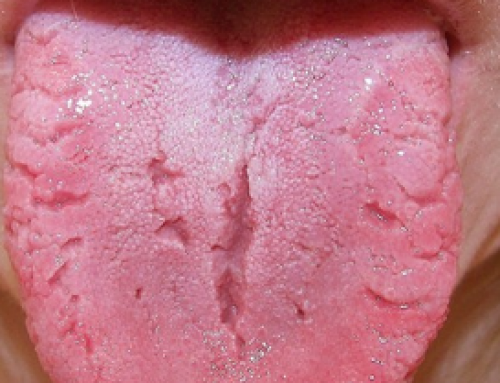 Causes and Remedies for a Cracked Tongue