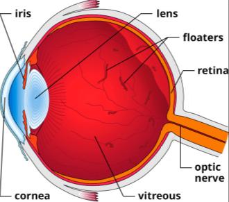 floaters in eye