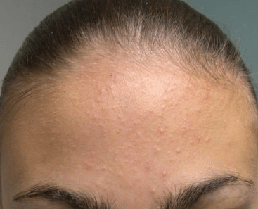 heat bumps on forehead