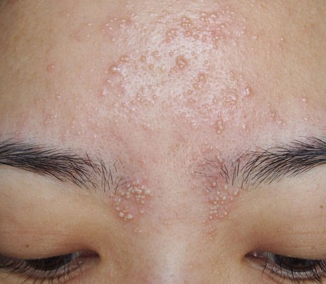 Heat Bumps, on Face, Forehead, Rash, Itchy, Get Rid ...