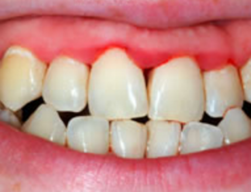 Inflamed Gums, Swollen, Infected, Bleeding, Sore, Painful, with Braces, Treatment, Home Remedy, Pictures