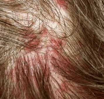 oozing blisters on scalp