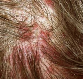 Sores on Scalp - Pictures, Symptoms, Causes, Treatment