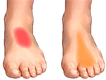 Pain On Top Of Foot Sharp Near Toes Ankle After