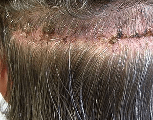 Sores On Scalp Painful Itchy Scabs Oozing Blisters