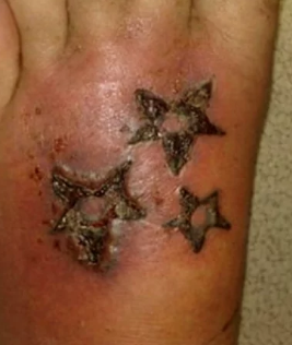 infected tattoo images before and after symptoms how