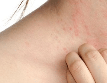 itchy bumps on skin