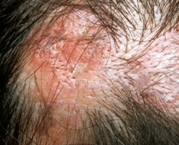 sores on scalp