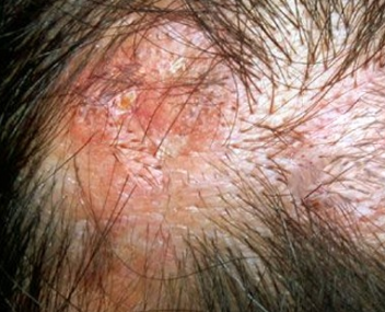 Itchy Scalp Pictures, Causes and Treatment - Health Hype