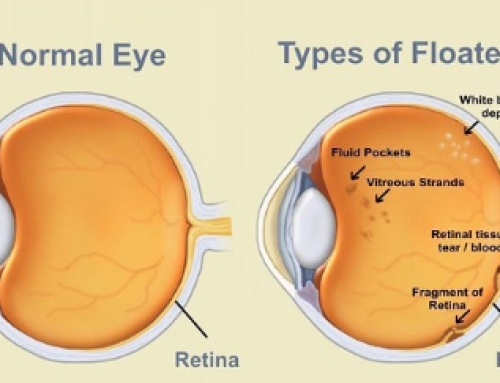 Floaters in the Eye, Causes, Black Spots in Vision, Get Rid, Natural Treatment, Pictures