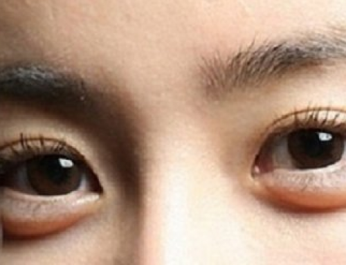 How to Remove Eye Bags Overnight, Naturally, Permanently, at Home, without Surgery