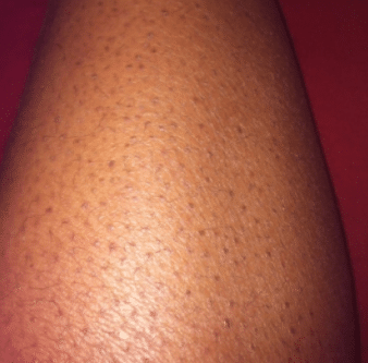 black dots on legs