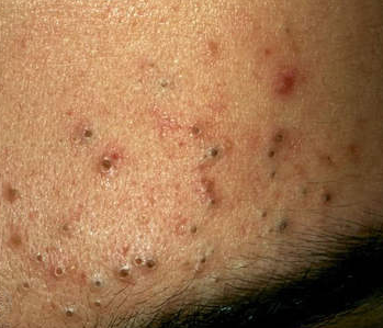 Black Dots on Skin, Tiny, Small, Itchy, Spots, Marks