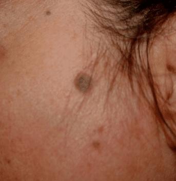 black spots on skin