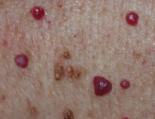 Blood Spots on Skin, Red, Tiny, Raised, Itchy, Bumps, Pictures, Causes, Get Rid