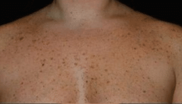 brown spots on chest