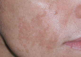 brown spots on face