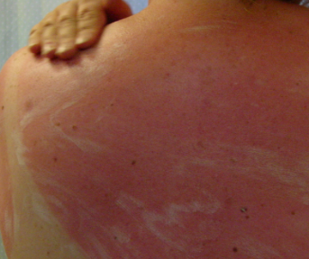 Home Remedies For Itchy Peeling Sunburn