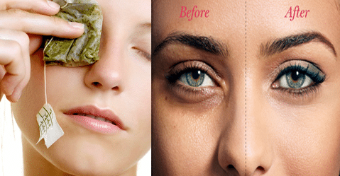 how to remove dark circles under your eyes naturally