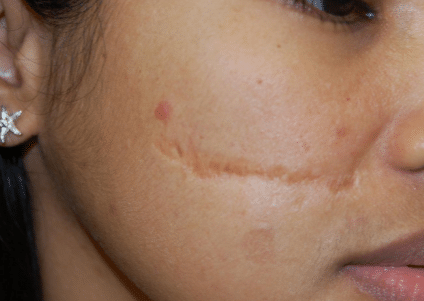 how to get rid of scars on face