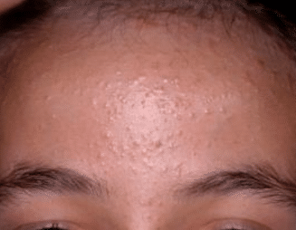 itchy forehead bumps