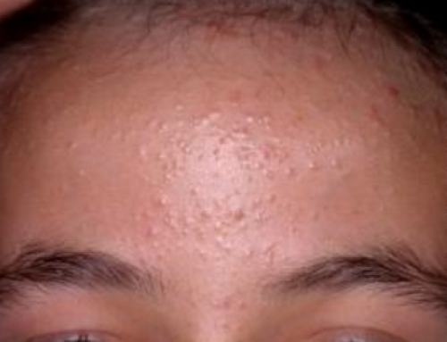 Bumps on Forehead, not Pimples, under Skin, Tiny, Large, Lumps, Zits, Red, White, Get Rid, Pictures