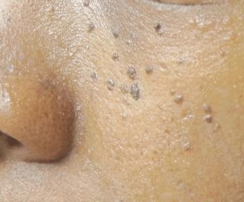 black dots on skin