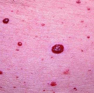 red blood spots on skin