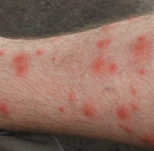 red splotches on legs not itchy