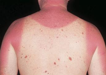 severe sunburn itch
