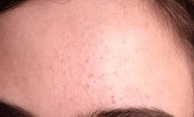 bumps on forehead