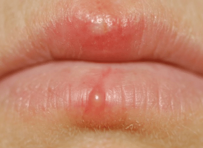 sunburned lip blisters