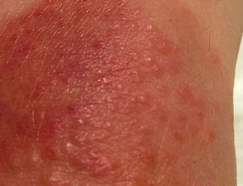 How Long Does Sunburn Itch Last, Causes, Severe, Peeling, Bumps, Treating, Relief, Pictures