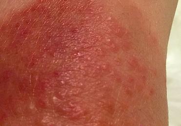 sunburn itch
