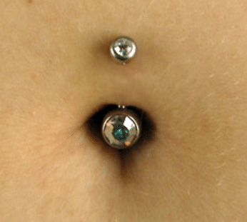 Normal belly button healing process