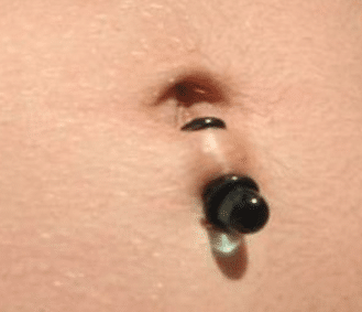 Bottom navel piercing rejection