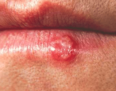 bump on lip that hurts