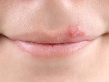 Bump on my upper lip