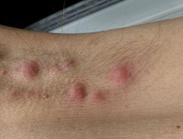 Bump Under Armpit Hurts Painful Lump Pimple Red Male