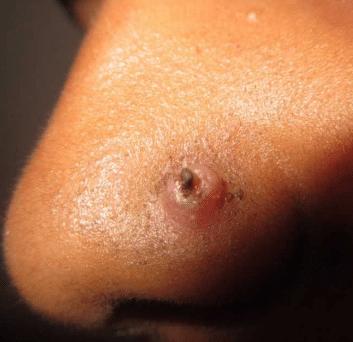 nose piercing bump